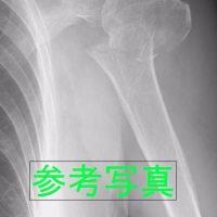 右肩上腕部関節骨折