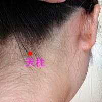 春先に現れる「片頭痛」