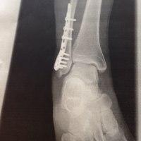 骨折15日目    恥ずかしい写真
