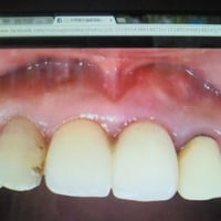 抜歯即時植立即時荷重インプラント 手術はたったの1回 身体に優しい痛くない腫れない低侵襲