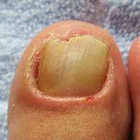 爪水虫治療日記~薬を変えて2ヶ月