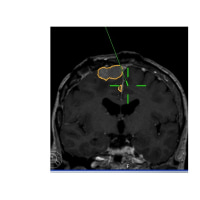 再発悪性髄膜腫に対するPDT