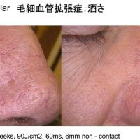 名古屋栄 東京銀座 素顔になるといつも気になる赤ら顔、毛細血管拡張症のレーザー治療について。