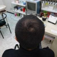 何故、高価な育毛剤を使っても、髪がはえないのか?