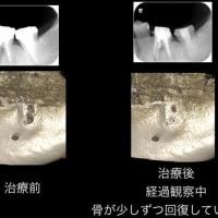 歯の保存を試みた治療と歯の移植