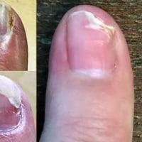 【爪のかさぶた表皮膜切除。新爪再生】