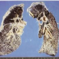日鉄鉱業さん、これは肺ですか?