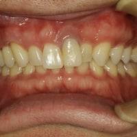 長い差し歯の治療 〜ピンクの歯茎のついたセラミックにならない治療法〜