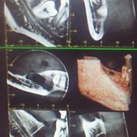インプラント手術が痛くて大変だ、と言う時代を終わりに。でも、なかなか伝わらないのも現実、です・・・