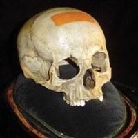 モーツァルトの頭蓋骨