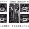 後頭部激痛発作の意外な原因 -臨床の場における観察の重要性-