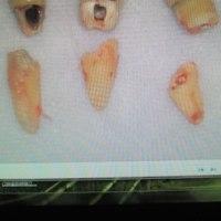 大臼歯部抜歯即時植立即時荷重インプラント9日後、とても綺麗です。普通に歯が入ってるだけ、にしか見えません。