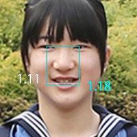 愛子様:卒業式 と 入学式 の写真比較  やはり別人!もうごまかせない!