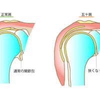 五十肩の原因は肘のこの筋肉に有り!    金沢市   整体   肩が上がらない