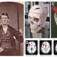 Phineas Gageの頭蓋骨と対面する@ハーバード大学