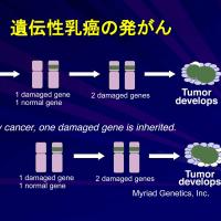 アンジーと遺伝性乳癌