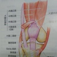 慢性膝痛の原因はシップだった!?
