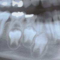 お子さんの歯が抜けたのに、永久歯がすぐに生えてこないのは、なぜ?