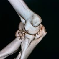 骨の一部が皮膚を突き破った場合は複雑骨折あつかい