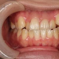 マウスピースで歯列矯正した、抜歯をしないで反対咬合を治す。