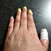 抗がん剤治療6回目と皮膚疾患