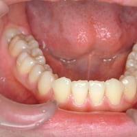 歯の数が少ない場合
