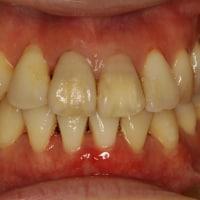 歯茎の問題は歯茎の厚みが原因かもしれません.