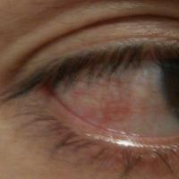 口内炎と眼痛