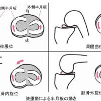 膝半月板亜脱臼の治療 Ver.1.4