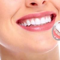 前歯を保険で差し歯にしない9つの理由