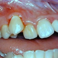 初期むし歯を予防する