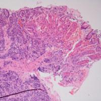 H. pylori陰性,粘膜下腫瘍様病変より,GACCD vs. NET