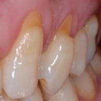 歯がしみる!でも、むし歯ではありません。