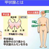 小児甲状腺がん「放射線の影響とは考えにくい」の中間報告?