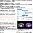 内臓脂肪CT検査の体験から 受けた方の反応やすすめた方とのやりとり
