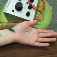 正中神経麻痺の治療