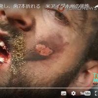 アメリカ人男性、口の中で電子たばこが爆発(電池は、LG製品)