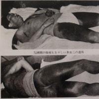 小林多喜二を虐殺した特高は罪に問われなかったの?