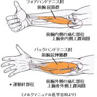 テニス肘に対する筋と筋付着部への運動針 Ver.2.2