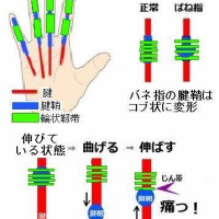 バネ指のエキセントリック筋収縮運動療法および小鍼刀と腱鞘切開刀による手術