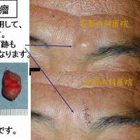 眉間の粉瘤