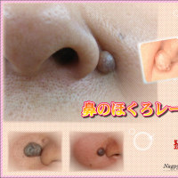 東京銀座 名古屋栄 鼻のほくろは、レーザー治療で除去。信頼のにしやまクリニックグループ!