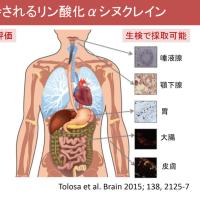 注目の「レム睡眠行動障害」を理解しよう!@日本睡眠学会