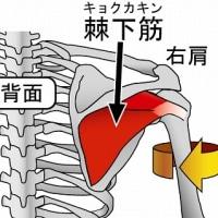 右背中の筋肉痛(棘下筋)