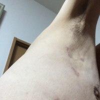 術後3ヶ月の診察