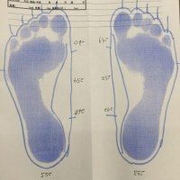 靴のフィッティング計測をしていただいた。