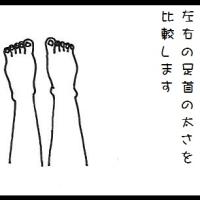 【二人目不妊症で生理痛・胸が苦しい・寝苦しい】足首に出る体の歪み