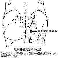 殿部深部筋のMPSと坐骨神経痛