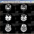 左肩のMRI