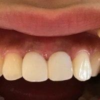 10年審美的健康な状態を保てる抜歯即時植立即時荷重修復インプラント治療の勧め
